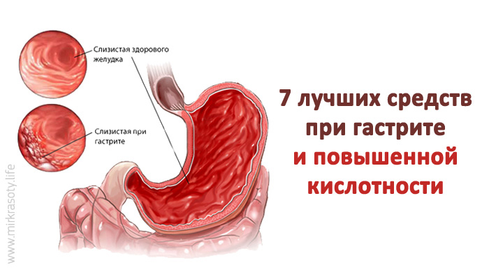 Как лечить желудок гастрит в домашних условиях