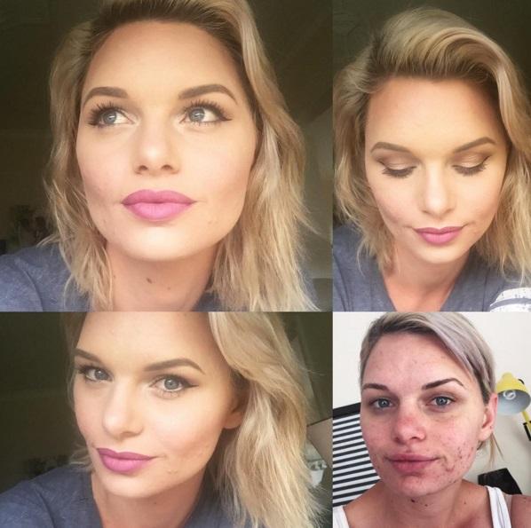 До и после: как макияж может преобразить проблемную кожу