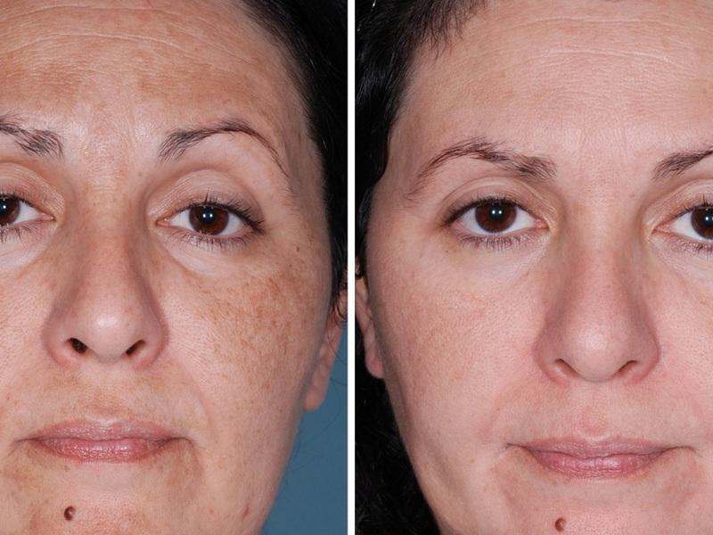 Протирайте лицо этим средством, и вашей коже будет снова 25!