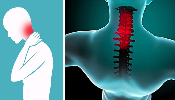 Может ли шейный остеохондроз отдавать в голову