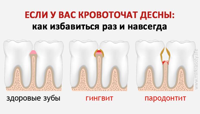 Кровоточат десны при чистке зубов - лечение