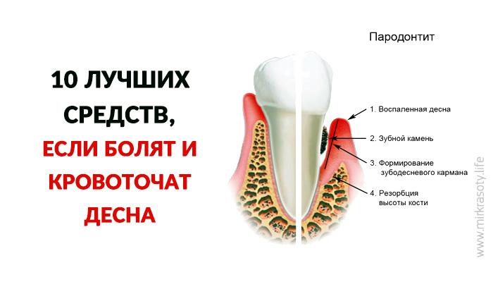 Лекарство от кровотечения десен