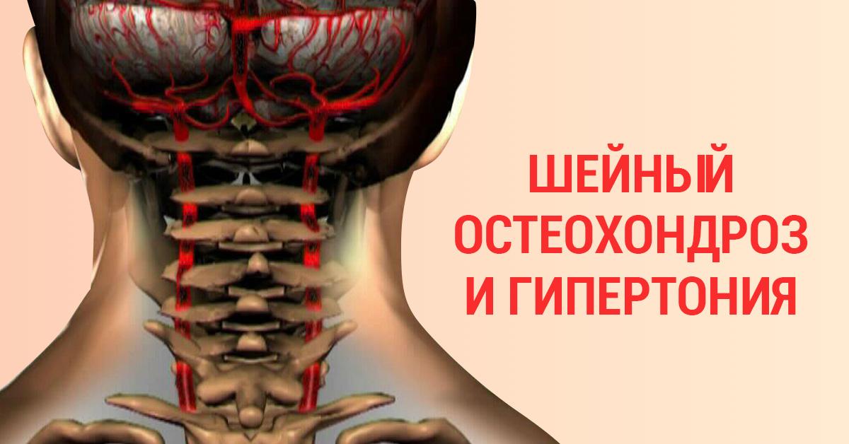 Шейный остеохондроз и давление инвалидность